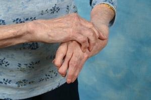 arthritis ridden hands